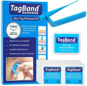 3. TagBand Skin Tag Removal Device