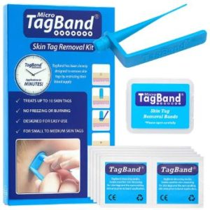 8. Micro TagBand Skin Tag Remover